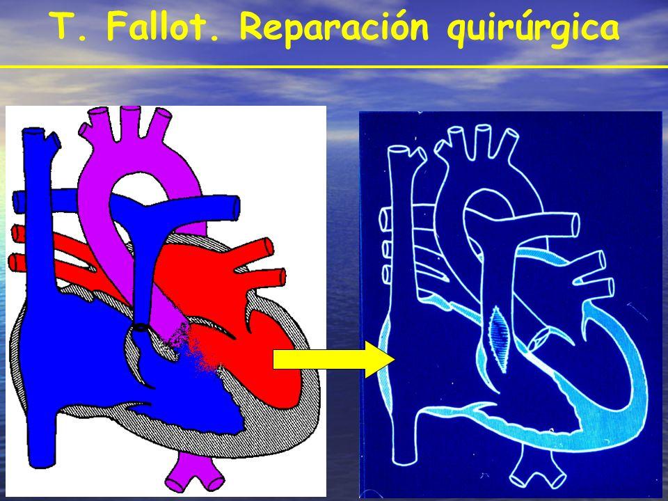 T. Fallot. Reparación quirúrgica