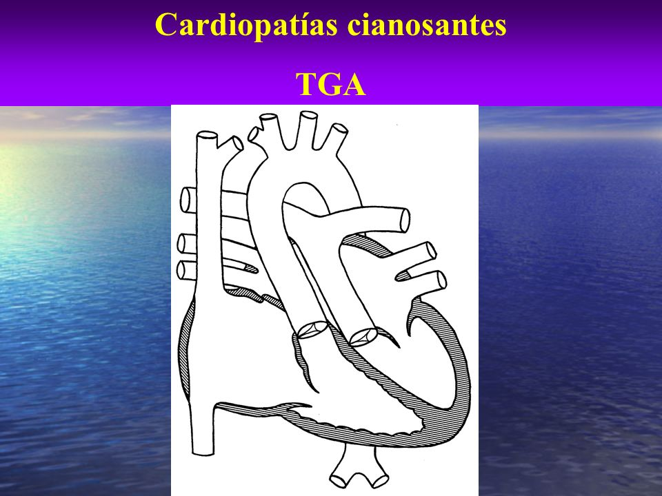 TGA. Reparación fisiológica. (atrial switch)