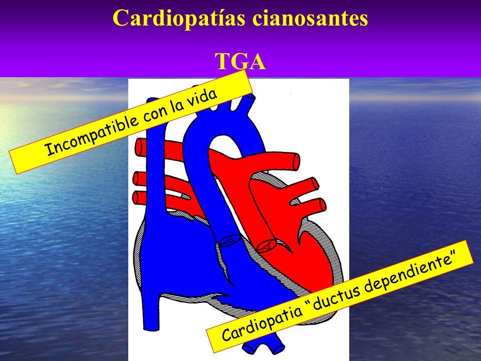 Cardiopatías cianosantes TGA Incompatible con la vida Cardiopatia ductus dependiente