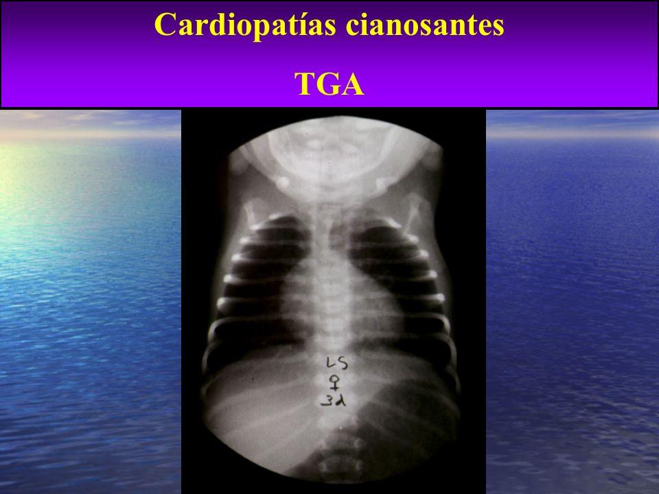 ¿? Evolución de CC cianóticas operadas TGA