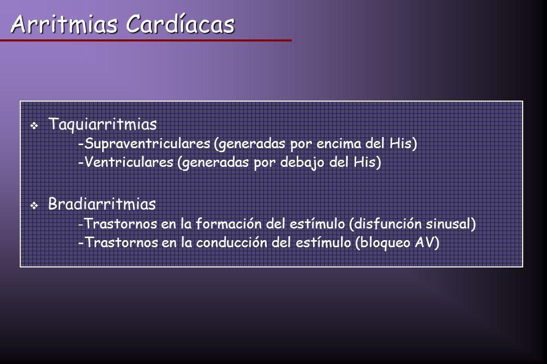 Arritmias Cardíacas Taquiarritmias -Supraventriculares (generadas por encima del His) -Ventriculares (generadas por debajo del His) Bradiarritmias - T