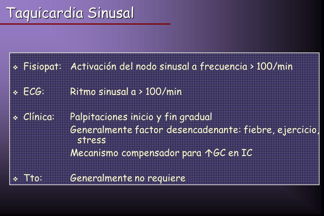 Taquicardia Sinusal Fisiopat: Activación del nodo sinusal a frecuencia > 100/min ECG: Ritmo sinusal a > 100/min Clínica:Palpitaciones inicio y fin gra