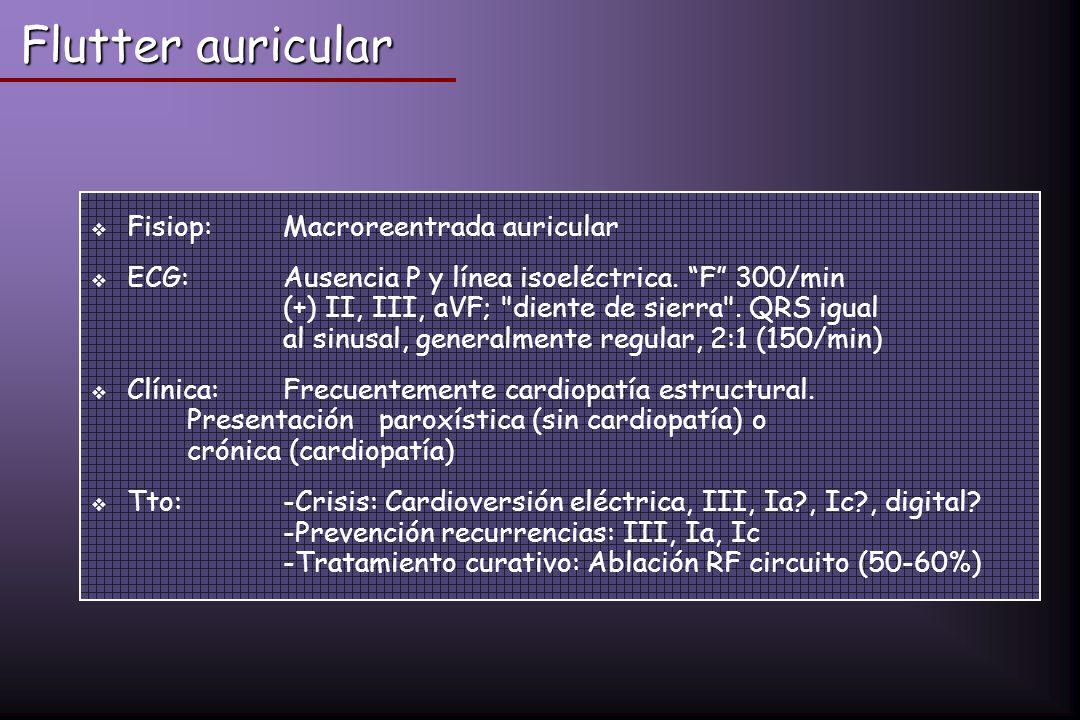 Flutter auricular Fisiop:Macroreentrada auricular ECG: Ausencia P y línea isoeléctrica. F 300/min (+) II, III, aVF;