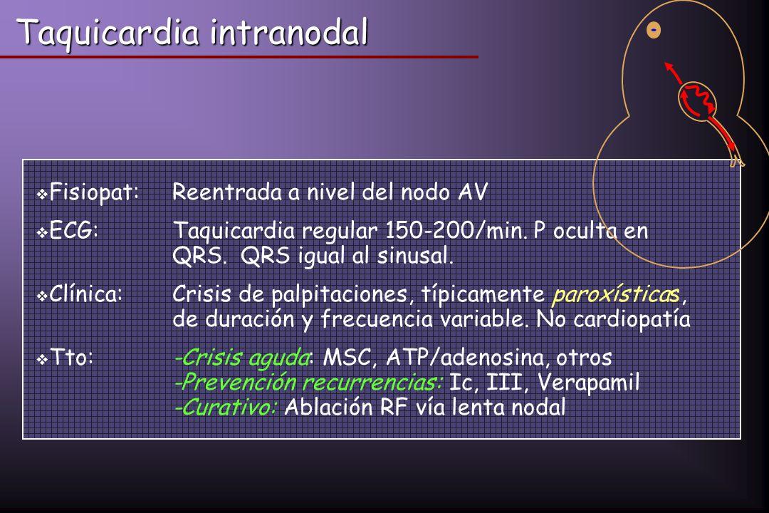 Taquicardia intranodal Fisiopat:Reentrada a nivel del nodo AV ECG: Taquicardia regular 150-200/min. P oculta en QRS.QRS igual al sinusal. Clínica:Cris