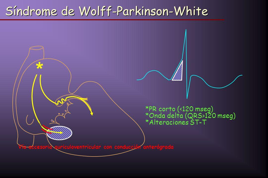 Síndrome de Wolff-Parkinson-White * *PR corto ( 120 mseg) *Alteraciones ST-T Vía accesoria auriculoventricular con conducción anterógrada