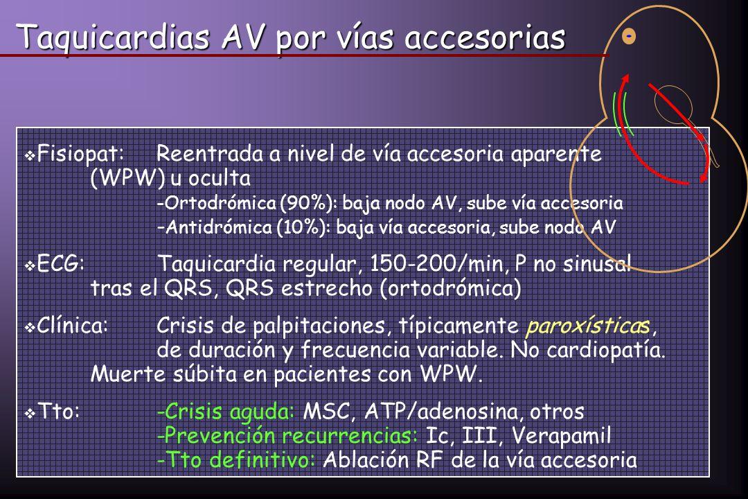 Taquicardias AV por vías accesorias Fisiopat:Reentrada a nivel de vía accesoria aparente (WPW) u oculta -Ortodrómica (90%): baja nodo AV, sube vía acc