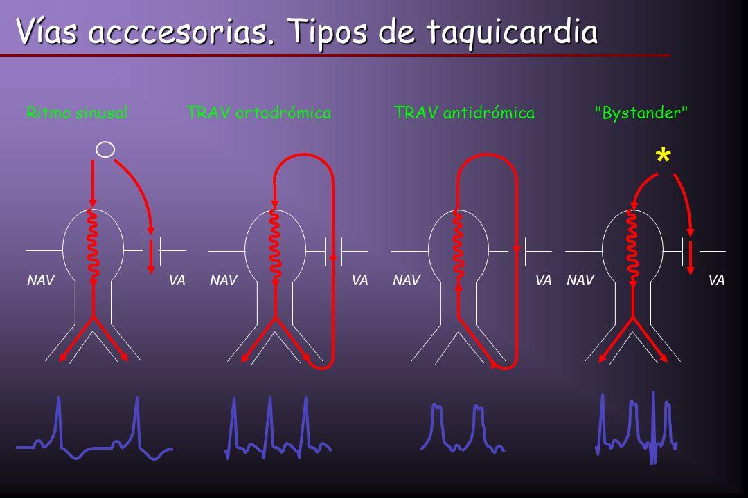 Vías acccesorias. Tipos de taquicardia NAVVA * NAVVANAVVANAVVA Ritmo sinusalTRAV ortodrómicaTRAV antidrómica
