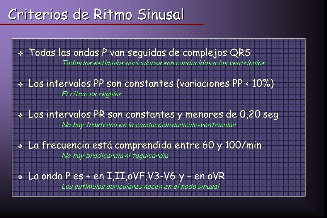 Criterios de Ritmo Sinusal Todas las ondas P van seguidas de complejos QRS Todos los estímulos auriculares son conducidos a los ventrículos Los interv