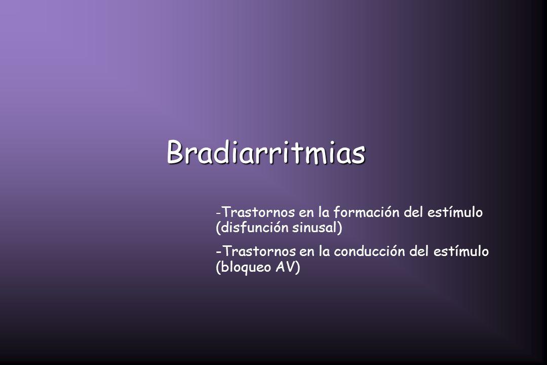 Bradiarritmias - Trastornos en la formación del estímulo (disfunción sinusal) -Trastornos en la conducción del estímulo (bloqueo AV)