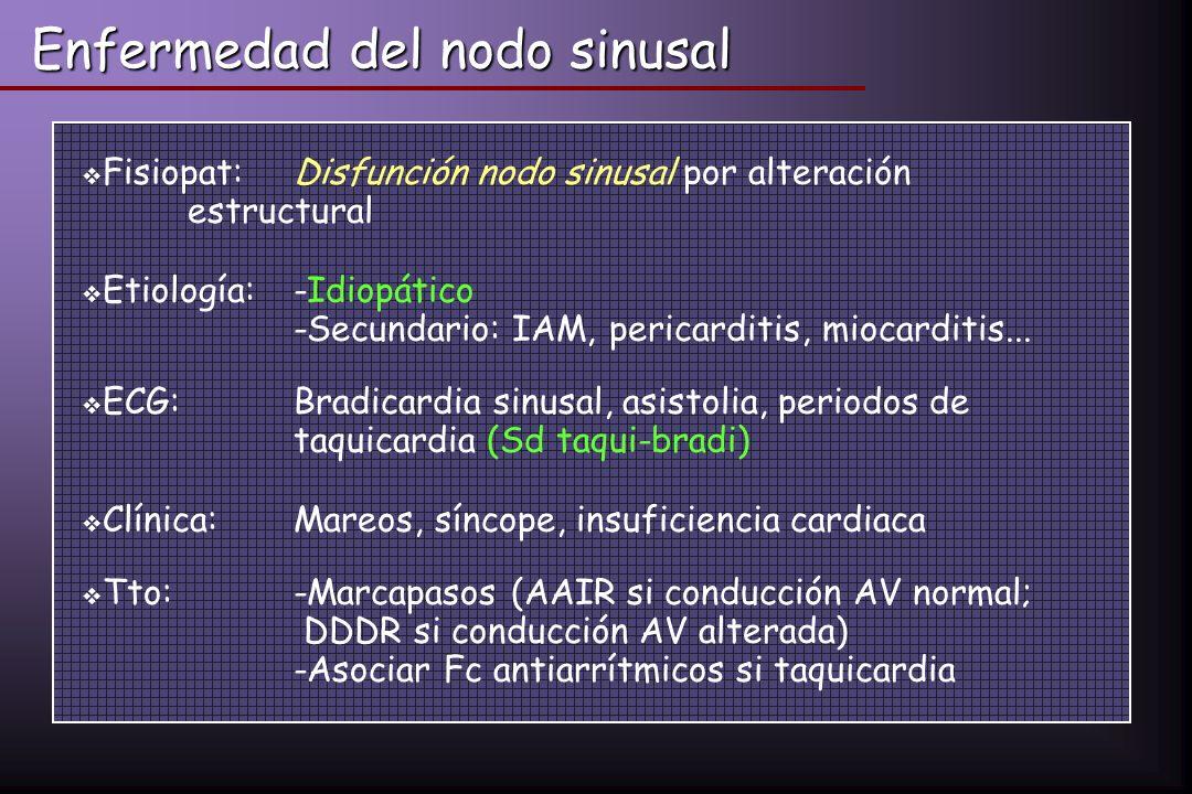 Enfermedad del nodo sinusal Fisiopat:Disfunción nodo sinusal por alteración estructural Etiología: -Idiopático -Secundario: IAM, pericarditis, miocard