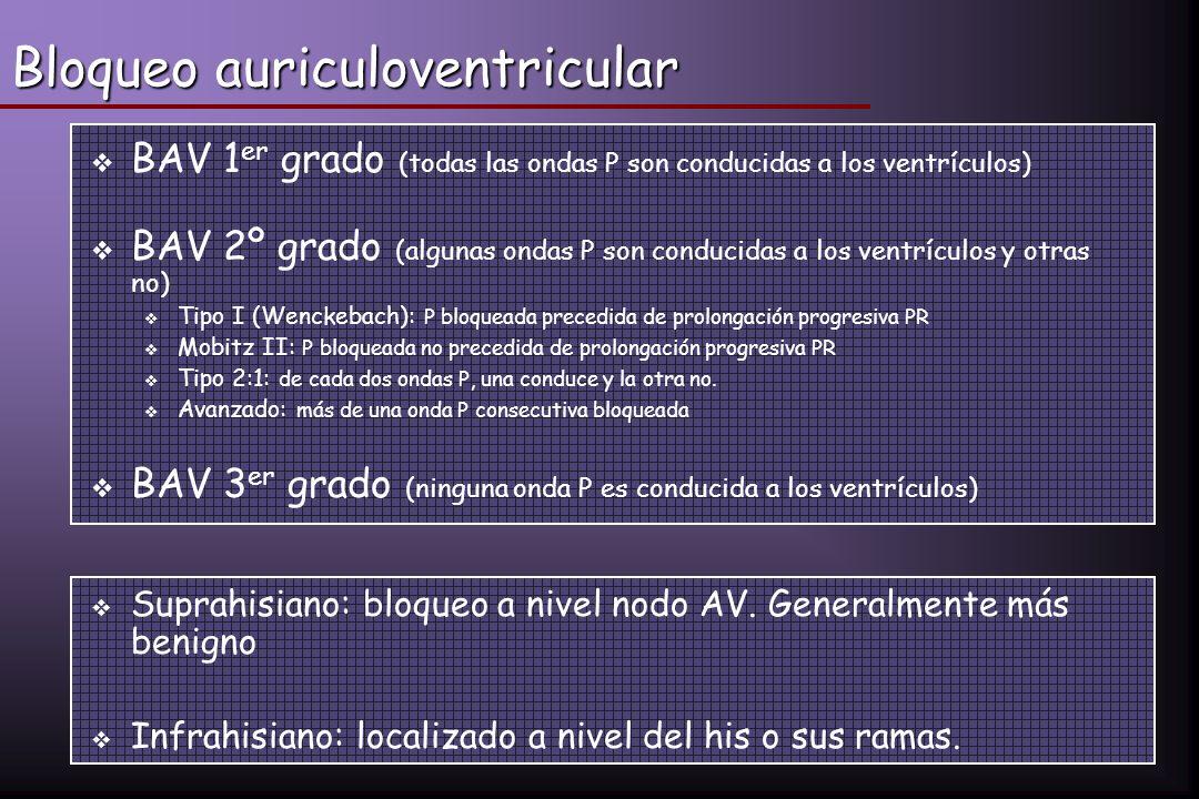 Bloqueo auriculoventricular BAV 1 er grado (todas las ondas P son conducidas a los ventrículos) BAV 2º grado (algunas ondas P son conducidas a los ven