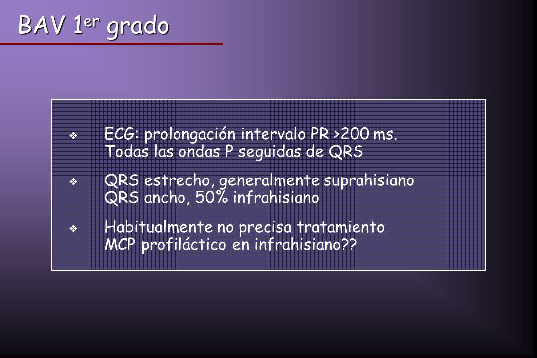 BAV 1 er grado ECG: prolongación intervalo PR >200 ms. Todas las ondas P seguidas de QRS QRS estrecho, generalmente suprahisiano QRS ancho, 50% infrah