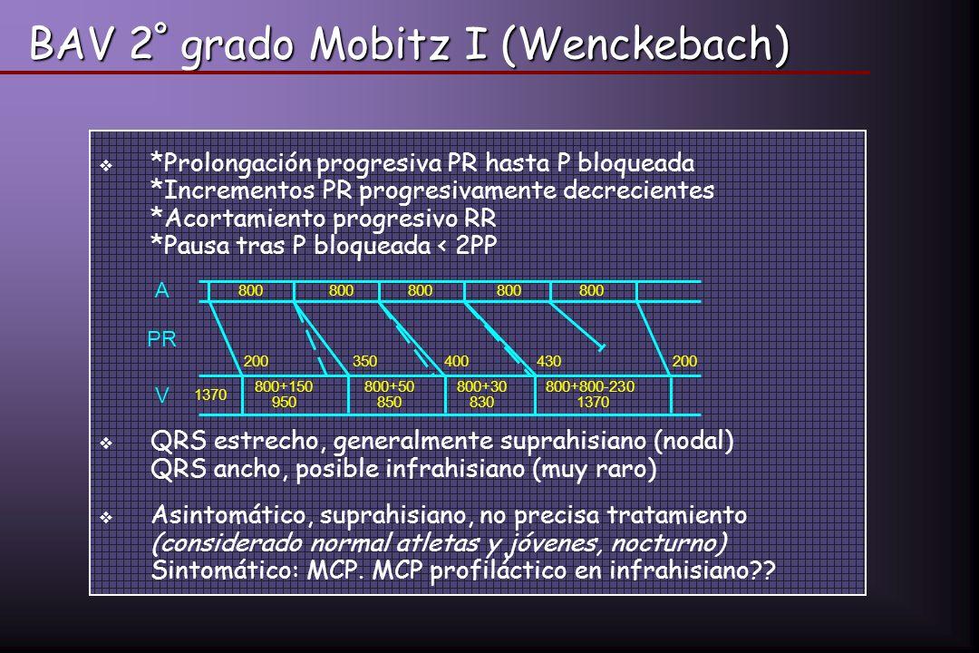BAV 2 º grado Mobitz I (Wenckebach) *Prolongación progresiva PR hasta P bloqueada *Incrementos PR progresivamente decrecientes *Acortamiento progresiv