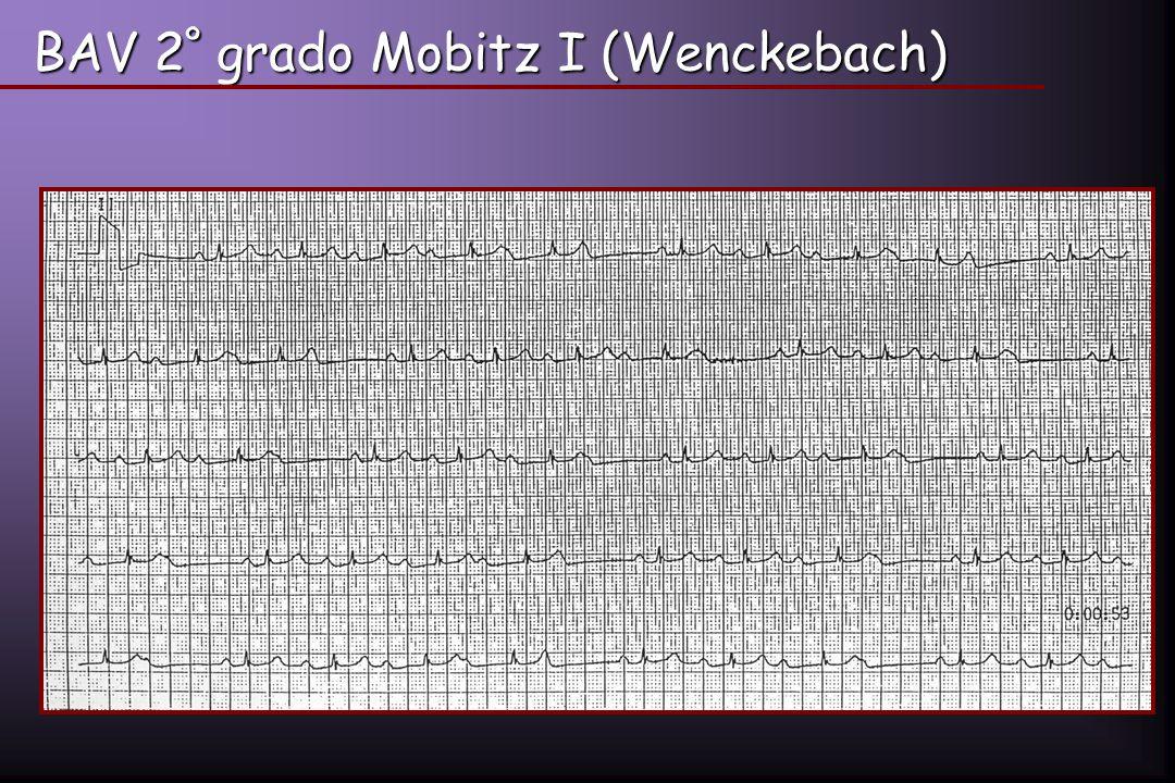 BAV 2 º grado Mobitz I (Wenckebach)