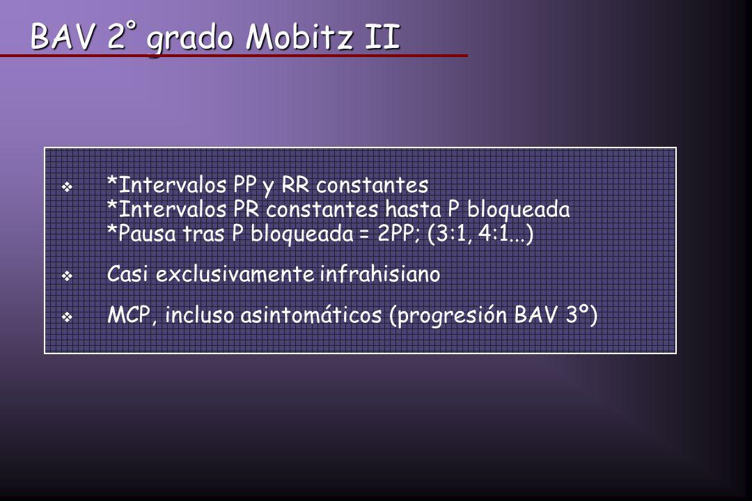BAV 2 º grado Mobitz II *Intervalos PP y RR constantes *Intervalos PR constantes hasta P bloqueada *Pausa tras P bloqueada = 2PP; (3:1, 4:1...) Casi e