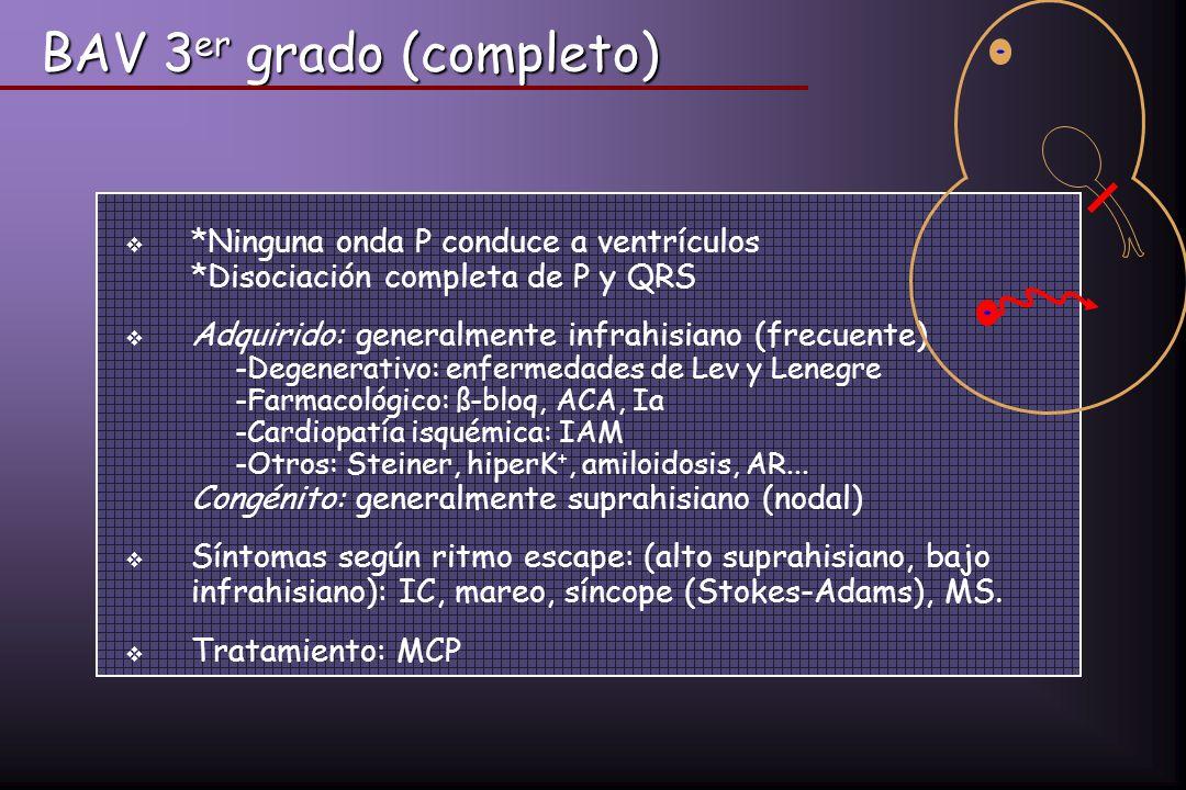 *Ninguna onda P conduce a ventrículos *Disociación completa de P y QRS Adquirido: generalmente infrahisiano (frecuente) -Degenerativo: enfermedades de