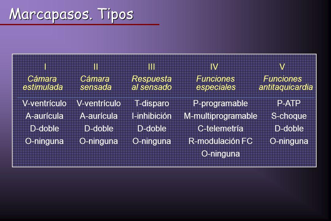 V-ventrículo T-disparoP-programableP-ATP A-aurícula I-inhibiciónM-multiprogramableS-choque D-doble C-telemetríaD-doble O-ninguna R-modulación FCO-ning