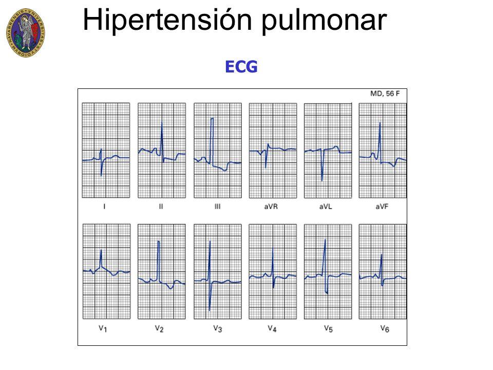 Hipertensión pulmonar ECG