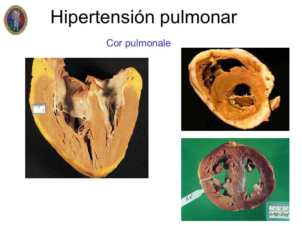 Hipertensión pulmonar Cor pulmonale