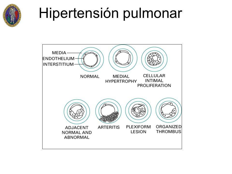 Hipertensión pulmonar Vasodilatadores Anticoagulantes Tratamiento de la ICC(Diureticos) Oxigenoterapia Tratamiento quirurgico Trasplante pulmonar o cardiopulmonar Septostomia auricular(paliativo) Tromboendarterectomia pulmonar Tratamiento