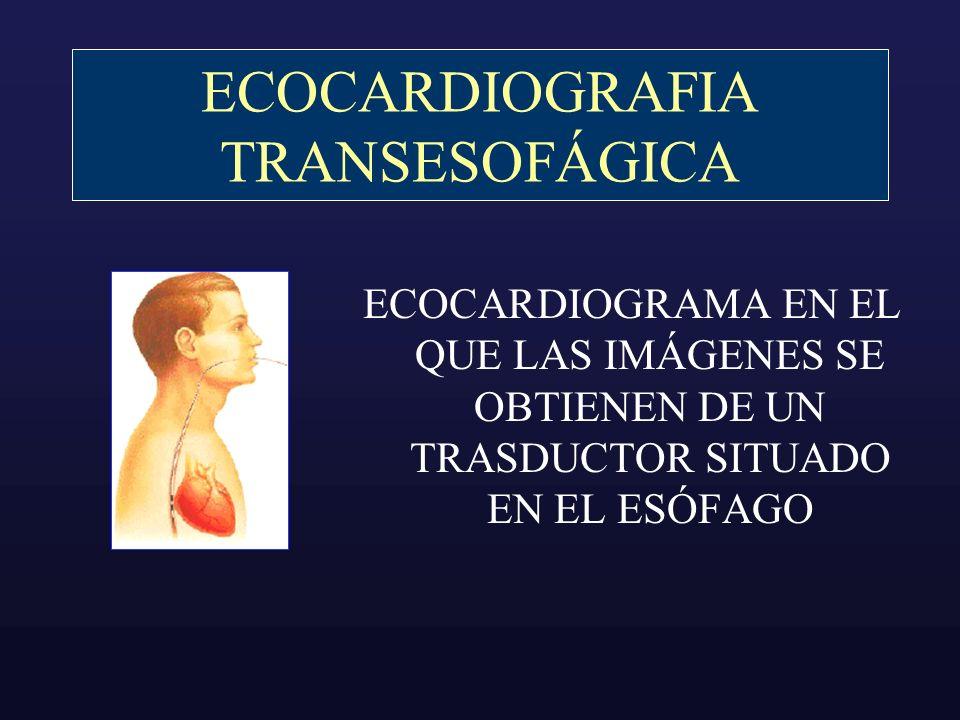 INDICACIONES Foco embolígeno Enfermedad Valvular Endocarditis Pre-cardioversión Aorta enfermedades congénitas Masas Intracardiacas Embolismo pulmonar 42% 14% 11% 6% 5% 2% 1%