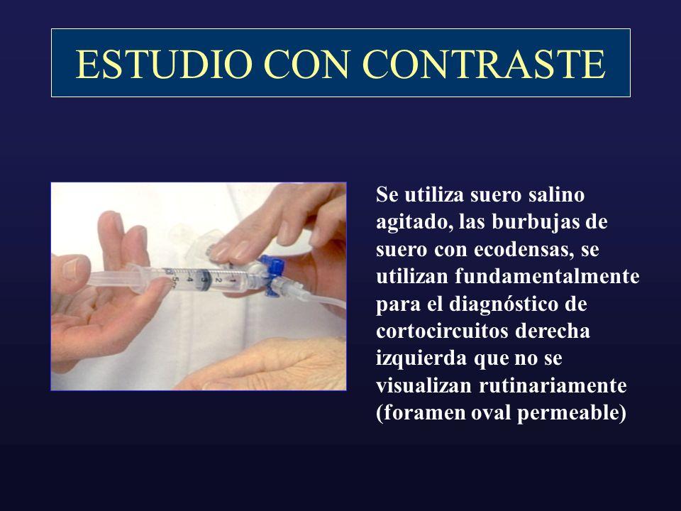 ESTUDIO CON CONTRASTE Se utiliza suero salino agitado, las burbujas de suero con ecodensas, se utilizan fundamentalmente para el diagnóstico de cortoc