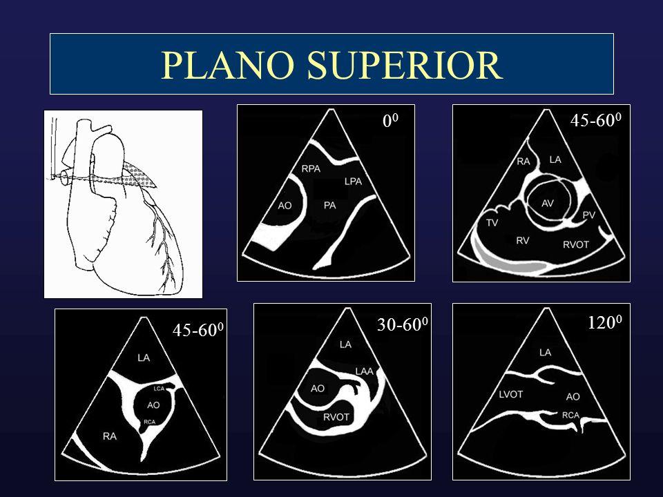 PLANO SUPERIOR 0 45-60 0 30-60 0 120 0 45-60 0