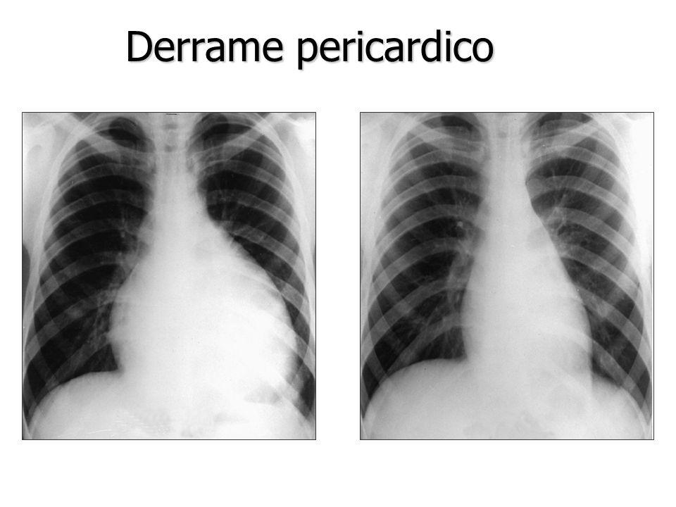 Derrame pericardico Ecocardiograma Ecocardiograma RxTorax(Cardiomegalia >200ml) RxTorax(Cardiomegalia >200ml) TAC/RNM TAC/RNM ECG. (QRS<15mV en I,II,I