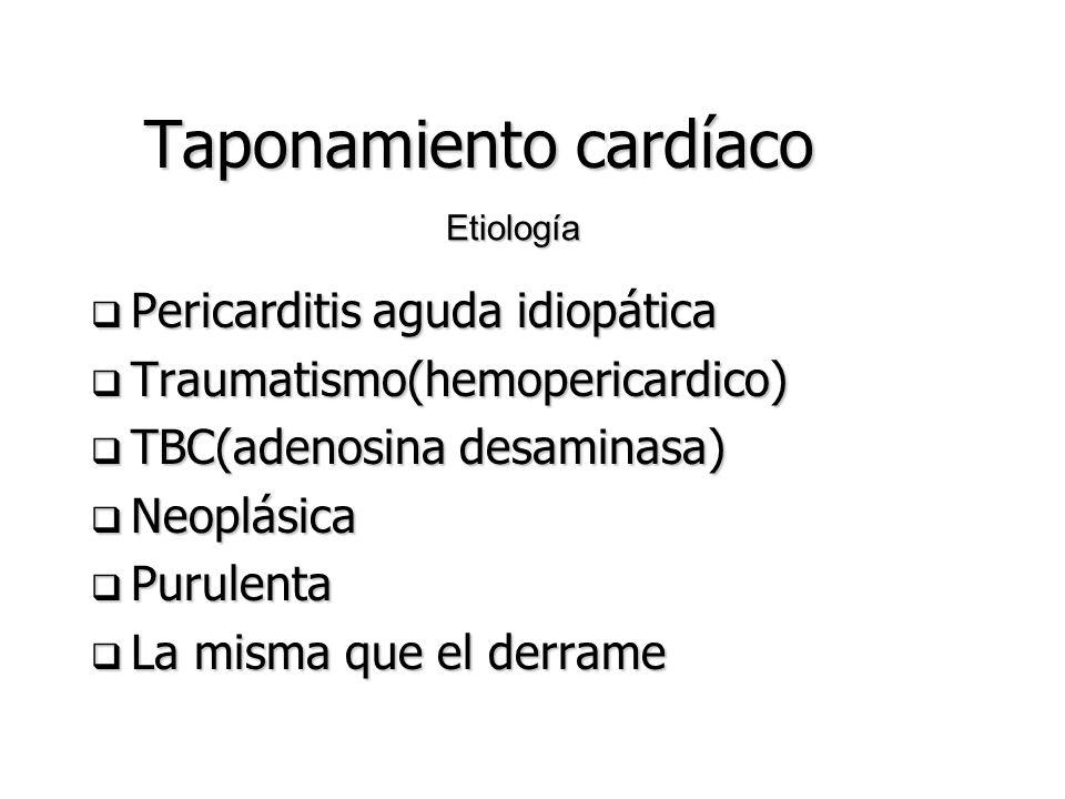 Taponamiento cardíaco Compromiso hemodinámico secundario a aumento de presión intrapericárdica Compromiso hemodinámico secundario a aumento de presión