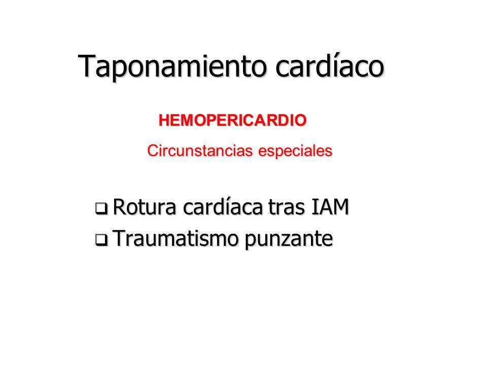 Taponamiento cardíaco Fisiologia del pulso paradójico inspiración