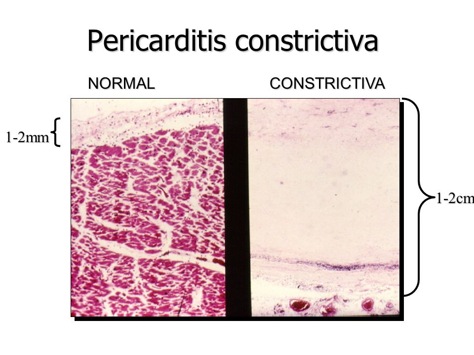 Pericarditis constrictiva 50% diagnóstico patológico inespecífico 50% diagnóstico patológico inespecífico TBC TBC Neoplasia Neoplasia Purulenta Purule