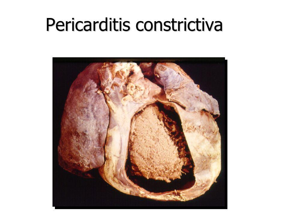 Pericarditis constrictiva NORMAL CONSTRICTIVA 1-2mm 1-2cm