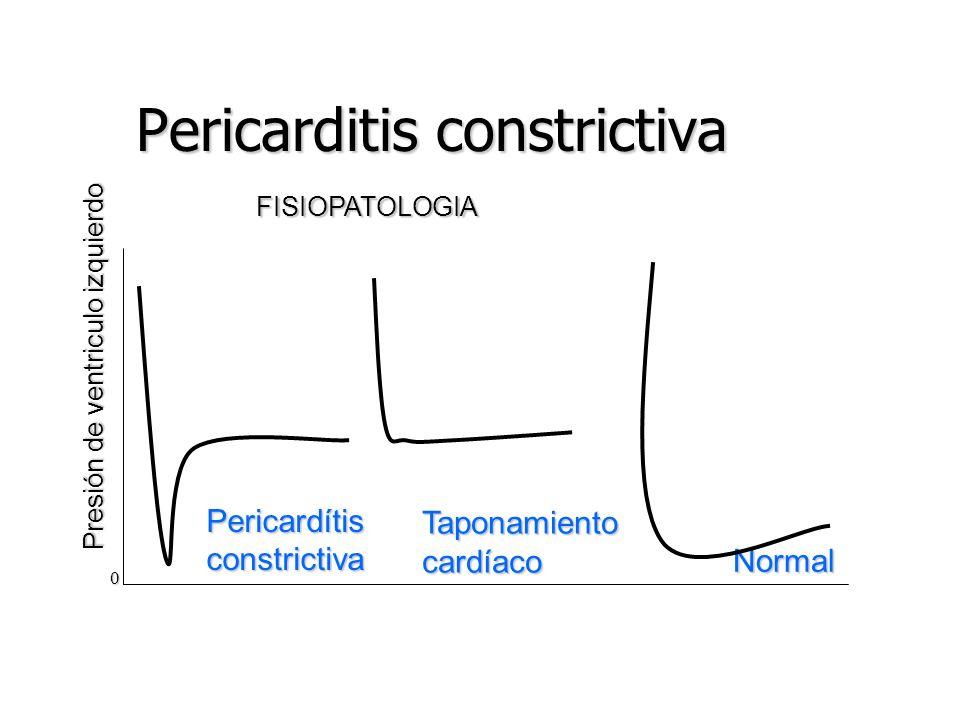 Pericarditis constrictiva Presión de ventriculo izquierdo Pericardítisconstrictiva Taponamientocardíaco 0 FISIOPATOLOGIA