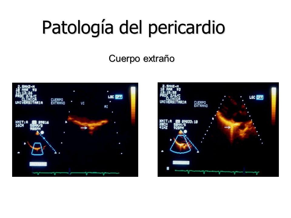 Pericardio: otras patologías Sindrome de Dressler Sindrome de Dressler Sindrome postpericardiotomia Sindrome postpericardiotomia Quiste pericardico si