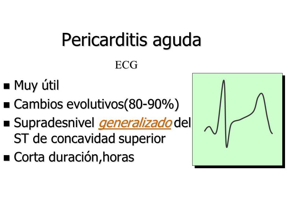 Pericarditis aguda n Dolor torácico característico n Roce n Fiebre (febrícula) Diagnóstico