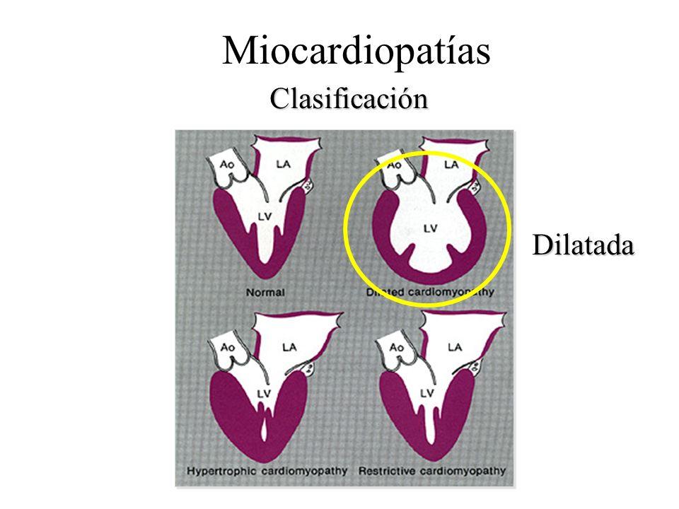 Clasificación Miocardiopatías Dilatada