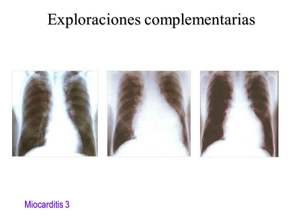 Miocarditis 3