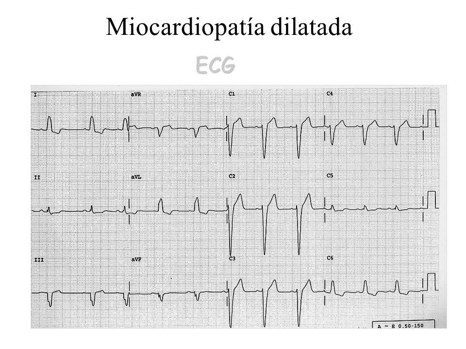 Miocardiopatía dilatada ECG