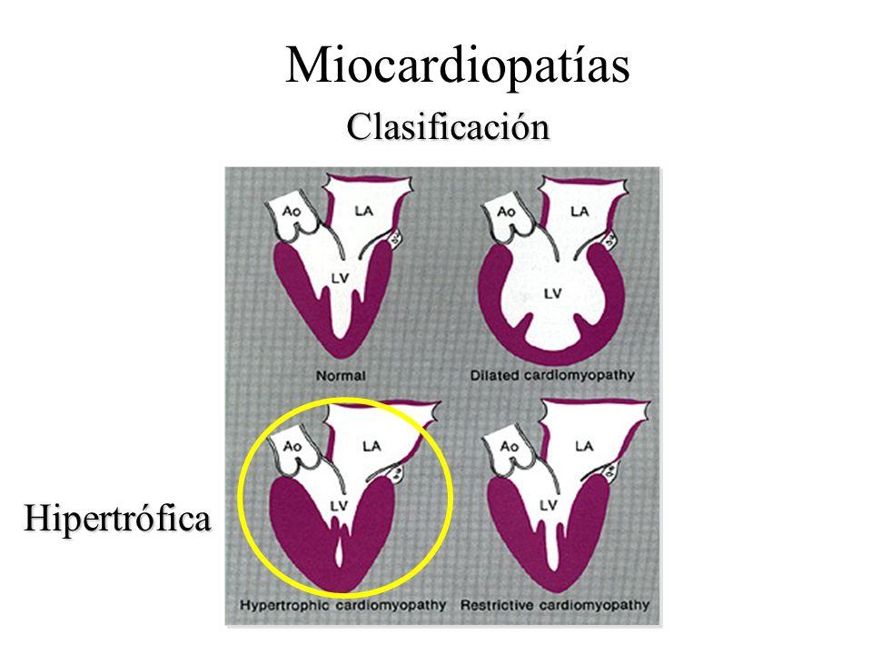 Clasificación Miocardiopatías Hipertrófica