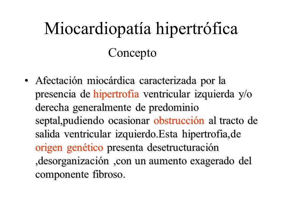 Miocardiopatía hipertrófica Afectación miocárdica caracterizada por la presencia de hipertrofia ventricular izquierda y/o derecha generalmente de pred