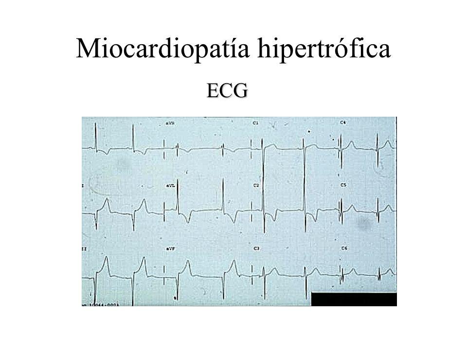Miocardiopatía hipertrófica ECG