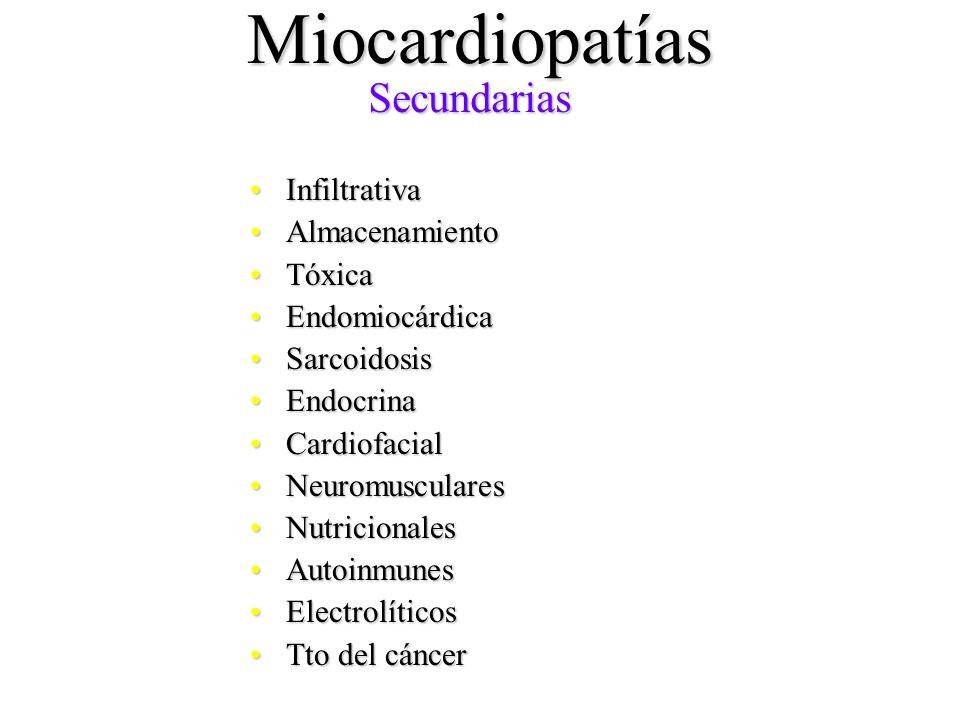 Miocardiopatías InfiltrativaInfiltrativa AlmacenamientoAlmacenamiento TóxicaTóxica EndomiocárdicaEndomiocárdica SarcoidosisSarcoidosis EndocrinaEndocr