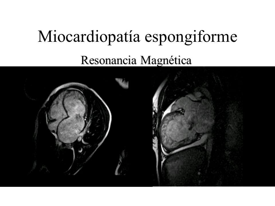 Miocardiopatía espongiforme Resonancia Magnética