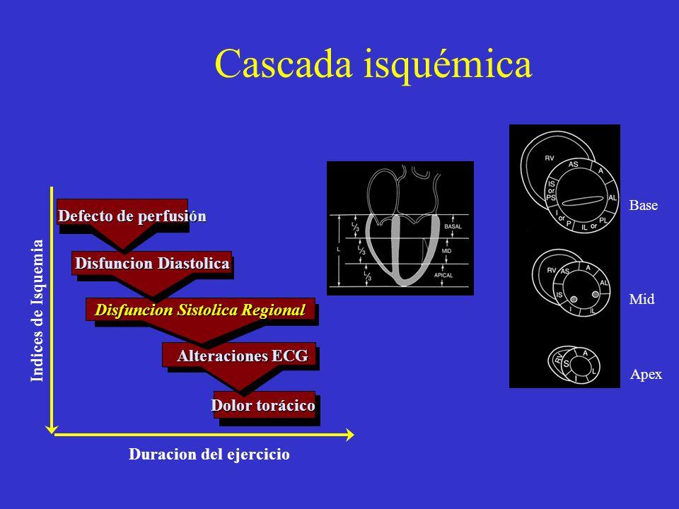 Cascada isquémica Defecto de perfusión Alteraciones ECG Dolor torácico Disfuncion Diastolica Disfuncion Sistolica Regional Indices de Isquemia Duracio