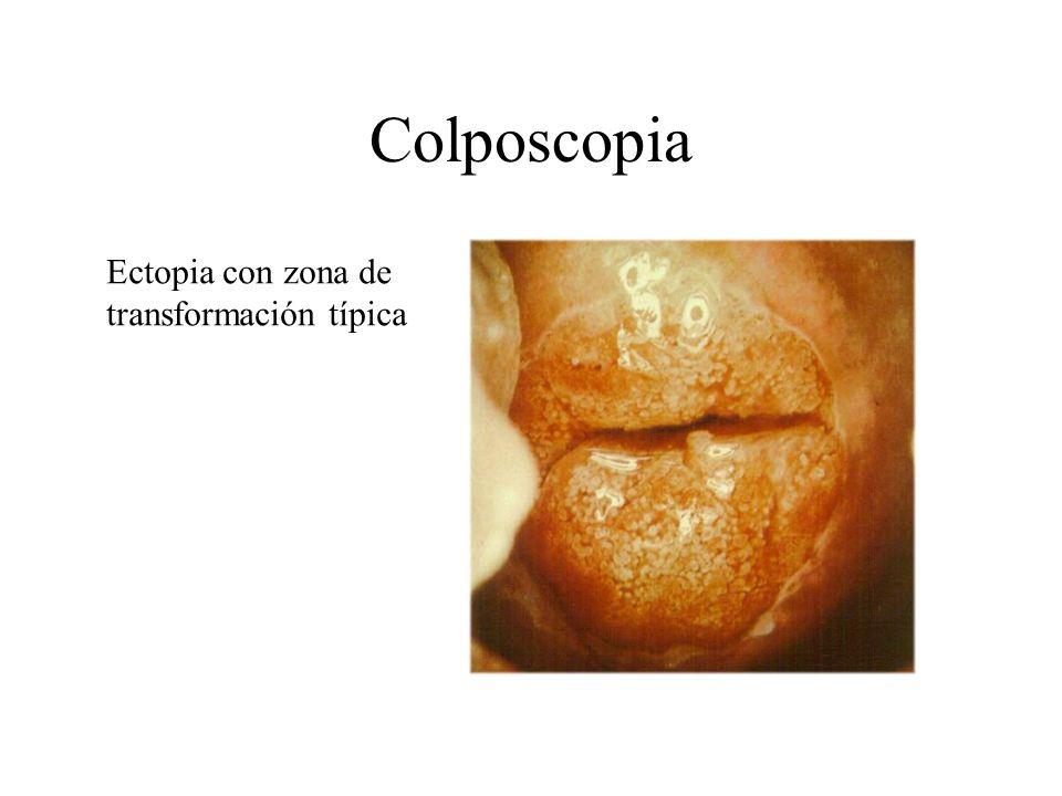 Colposcopia Ectopia con zona de transformación típica