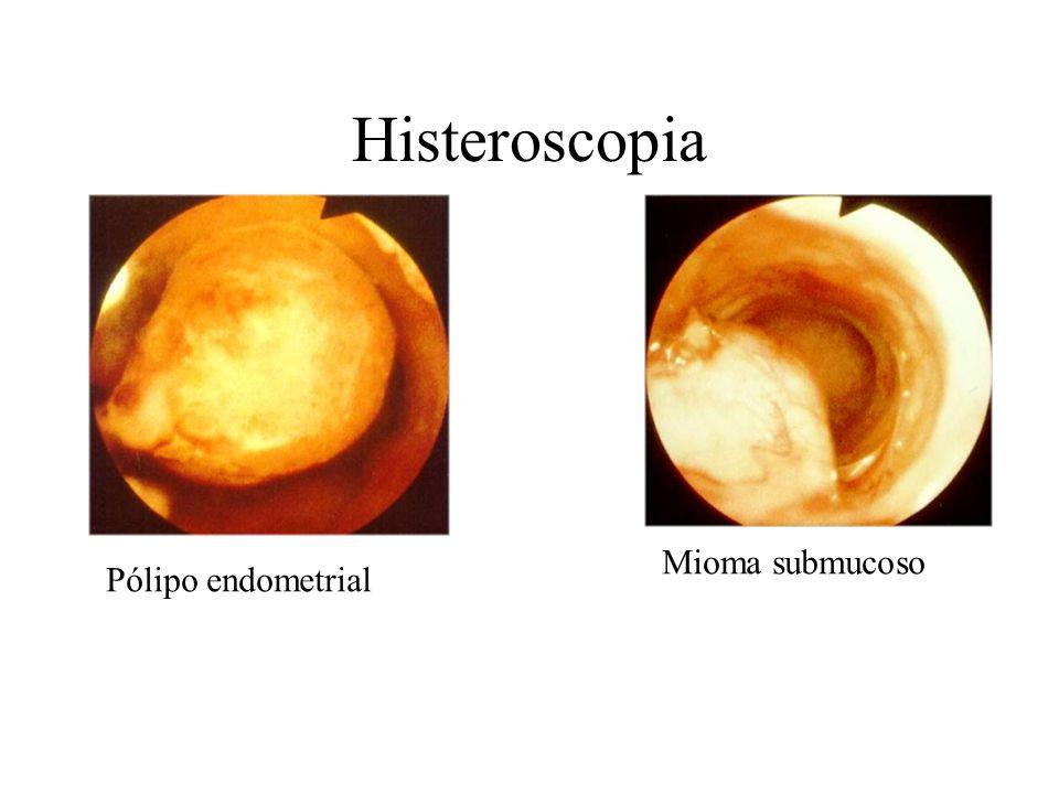Histeroscopia Pólipo endometrial Mioma submucoso