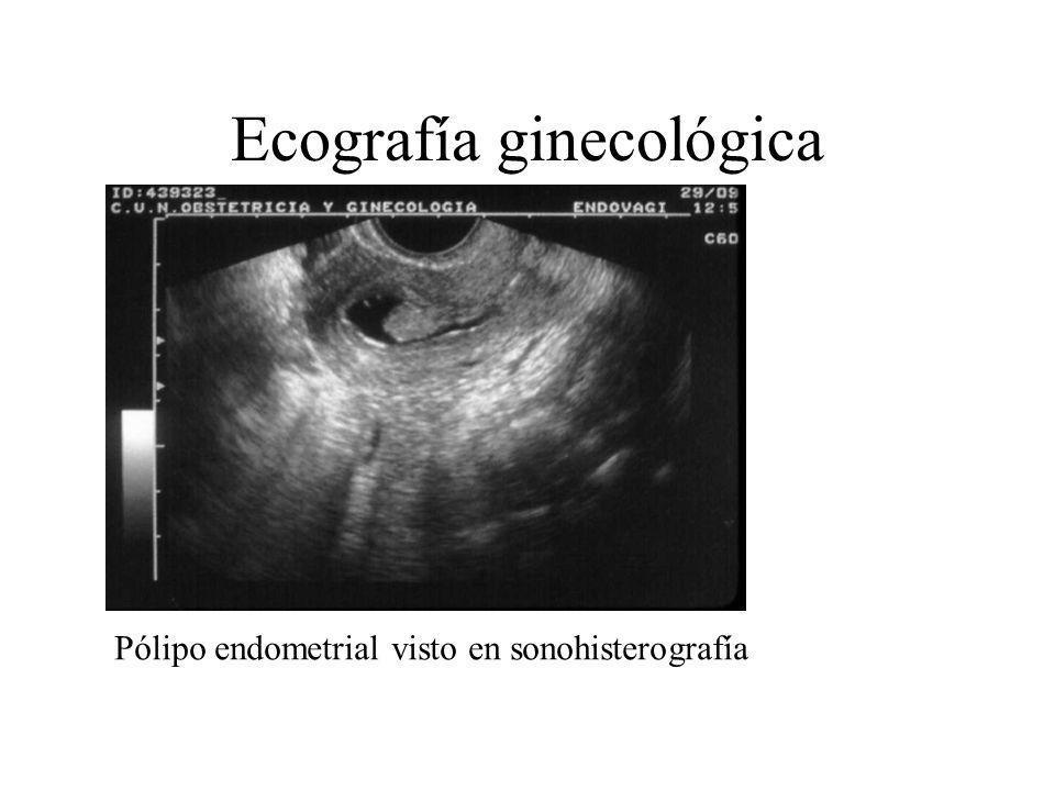 Ecografía ginecológica Doppler color en cáncer de ovario