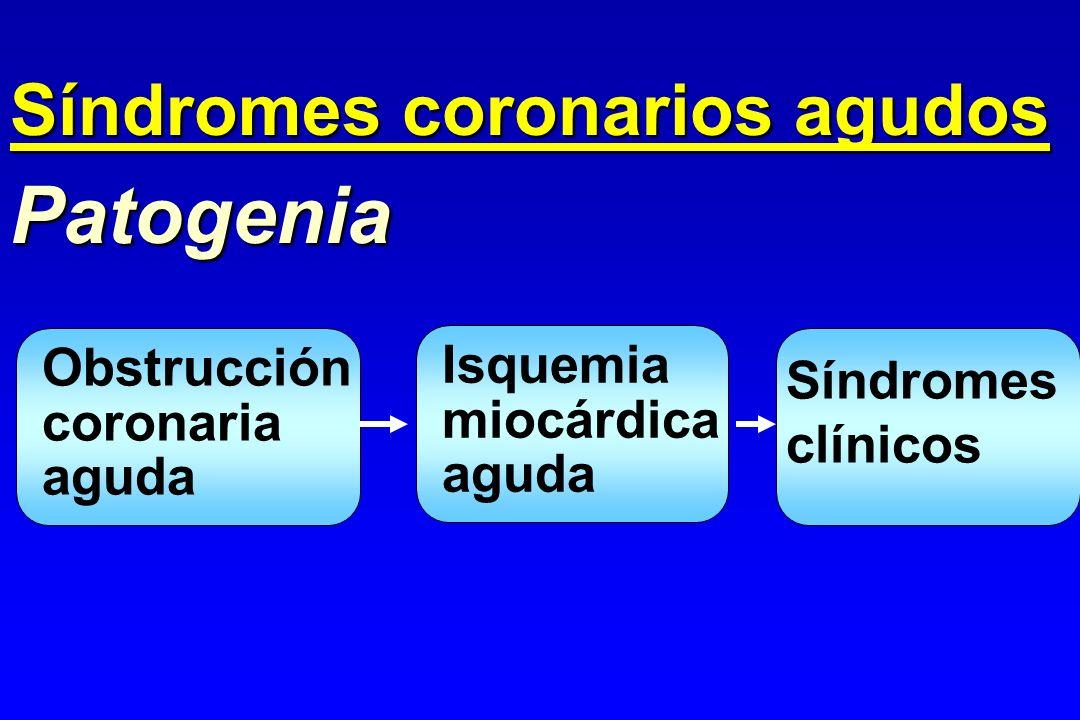 Obstrucción coronaria aguda Patogenia Isquemia miocárdica aguda Síndromes clínicos Síndromes coronarios agudos