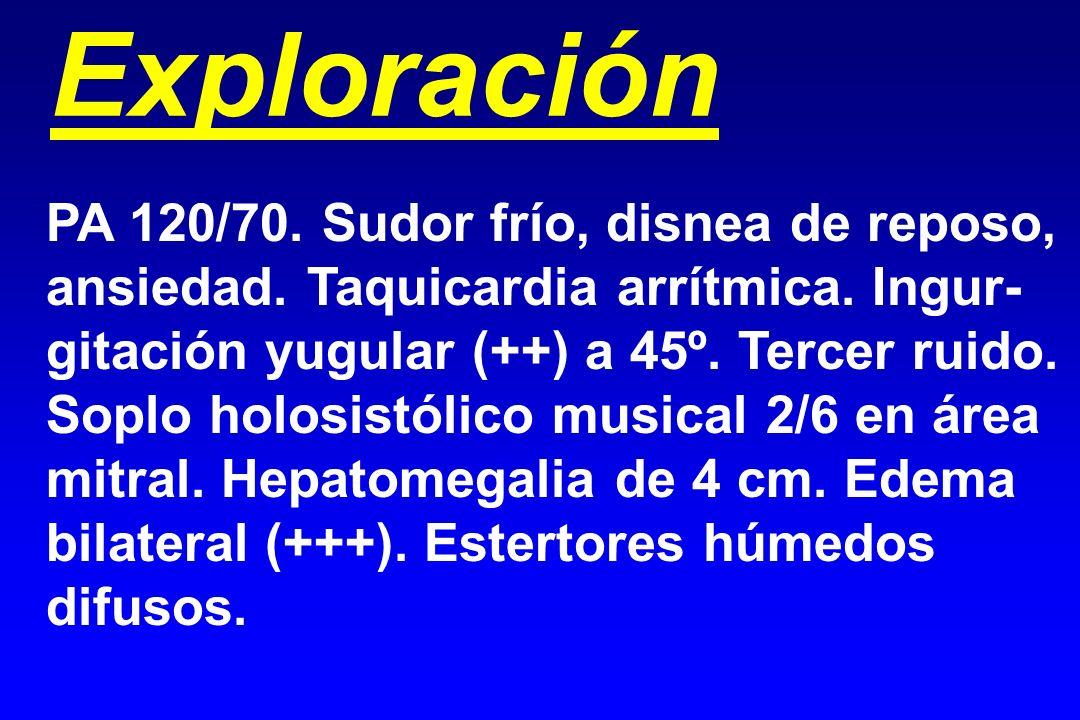 Exploración PA 120/70. Sudor frío, disnea de reposo, ansiedad. Taquicardia arrítmica. Ingur- gitación yugular (++) a 45º. Tercer ruido. Soplo holosist