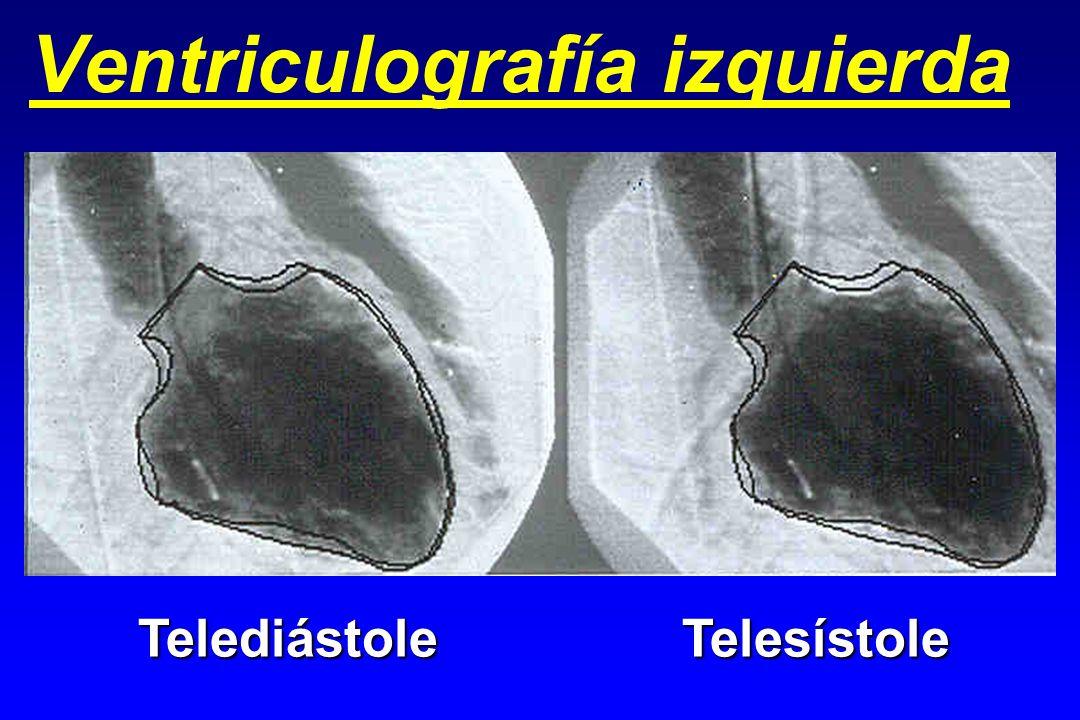 Ventriculografía izquierda TelediástoleTelesístole